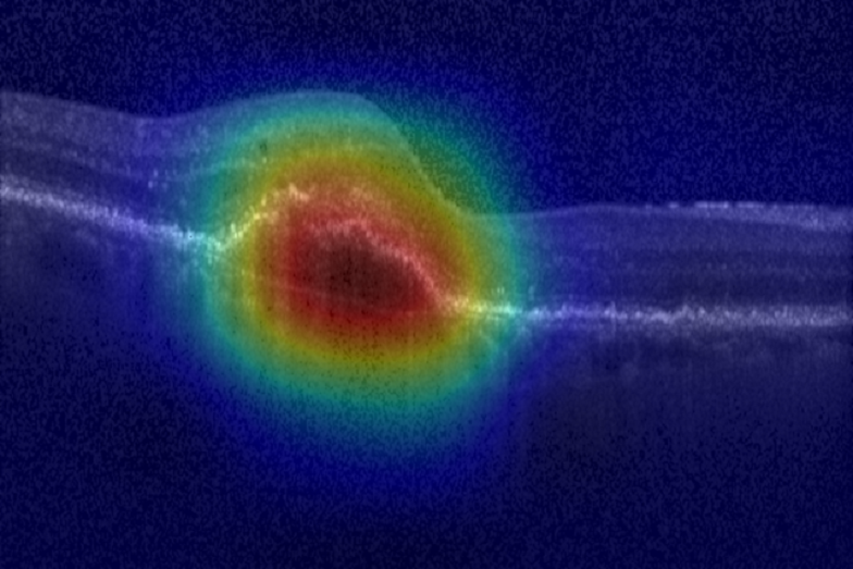 Image scan of a patient retina suffering from AMD